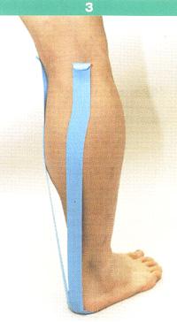 腓腹筋3.jpg