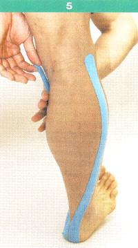腓腹筋5.jpg